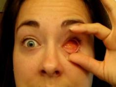 June 08 Removing and Replacing my prosthetic eye - YouTube