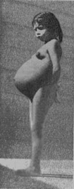 Lina Medina (born September 27, 1933, in Ticrapo, Peru) is the youngest confirmed mother in medical history, giving birth at the age of about 5.5-years-old. (http://en.wikipedia.org/wiki/Lina_Medina)