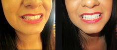 The One Beauty Lounge also does teeth whitening. Check out this awesome before and after shot!