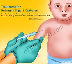 In order to treat pediatric type 1 diabetes, one should track the level of insulin in the blood and have a balanced diet. As the child grows, the treatment pattern should also change. High Blood Sugar Causes, Blood Sugar Diet, Diabetes Mellitus Type 2, Type 1 Diabetes, Pediatric Nursing, Nursing Schools, How To Control Sugar, Type 1