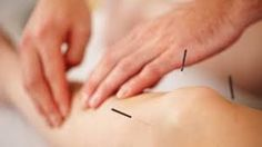 Acupuncture has been practiced for thousands of years and plays an important role in Traditional Chinese Medicine (TCM). Can acupuncture help Stage 4 CKD (Chronic Kidney Disease) with chronic osteoarthritis? Fact of Acupuncture According to Acupuncture For Anxiety, Acupuncture Benefits, Acupuncture For Weight Loss, Treating Fibromyalgia, Fibromyalgia Treatment, Rheumatoid Arthritis, Alternative Health Care, Back Pain, Acupuncture