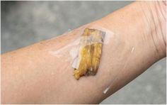Tape the banana peel over the splinter. The enzymes will shift the splinter…