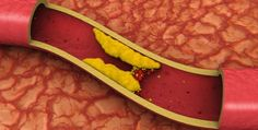 #Salud   #EU estudia aprobar fármaco contra el #colesterol