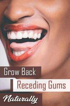 The initial symptom of receding gums might be a sensitive tooth and longer-looking teeth. A dentist will seek out receding gum signs and suggest oral health hygiene steps to take, or recommend treatment to cease the recession. According to the English N Reverse Receding Gums, Grow Back Receding Gums, Gum Health, Dental Health, Oral Health, Health Care, Teeth Health, Dental Care, Dental Hygienist