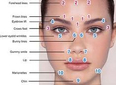 botox-eyebrow-lift-injection-sites-eyebrows-plastic-surgery-lipfillersgonewrong/ - The world's most private search engine Facial Fillers, Botox Fillers, Dermal Fillers, Botox Brow Lift, Eyebrow Lift, Botox Injection Sites, Botox Injections, Relleno Facial, Botox Cosmetic