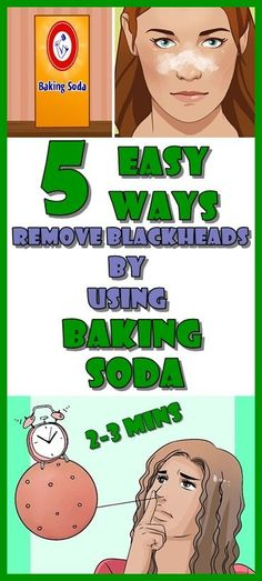 5 Easy Ways to Remove The Blackheads By Using Baking Soda Having blackheads is certainly not the beauty spot that anyone would want! Blackheads are formed Baking Soda And Honey, Baking Soda Face, Baking Soda Shampoo, Blackhead Mask, Blackhead Remover, Anne Fleck, Wash Your Face, Dead Skin, Squat