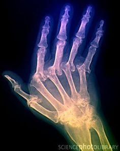 Arthritic hand, X-ray Deann Houseman-Bishop via Allison Rogalski onto The Nurse & X-Ray Tech in me