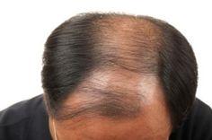 Beta Sisosterol For Hair Loss