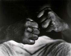 Muhammad Ali's hands after Cooper fight, 1966. Photo by Gordon Parks.