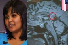 Hyderabad woman's brain tumour turns out to be 'evil twin' :http://tamilgoose.com/hyderabad-womans-brain-tumour-turns-out-to-be-evil-twin/