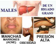 Dieta para el hígado graso y la obesidad. ~ Dietas fáciles para bajar de peso.