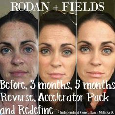 Results like these are WHY Rodan + Fields is the #1 Skincare Brand in North America and the FASTEST Growing! This is not a magic potion but with consistency you will see REAL RESULTS! Are YOU ready for your transformation?! #60DayMoneyBackGuarantee #Reverse #Redefine #RealResults
