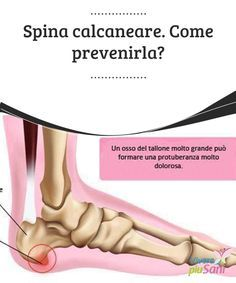 Spina #calcaneare. Come prevenirla? #Spina calcaneare: cos'è e come #prevenirla. Reflexology, Ayurveda, Reiki, Natural Health, The Cure, Alternative, Stress, Healing, Beauty