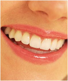 Smart Teeth give you a truly natural smile in Wichita.
