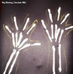 """Skeleton Kids Craft - Read a book about body systems, bones, or x-rays, and do this craft.  Trace hands and use q-tips for bones.  *Also could be used as a craft for the letter """"X"""" for x-rays or Halloween"""