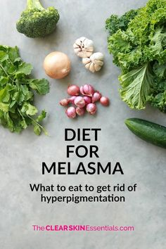 Did you know that changing your diet can help to get rid of hyperpigmentation and dark patches? Click through to find out more about a diet for melasma, and what foods you need to take out, and add in to your diet to even out your skin tone. Foods For Clear Skin, Clear Skin Detox, Clear Skin Tips, Pin On, Essentials, Utila, Skin Treatments, Geometric Tattoos, Tattoo Ideas