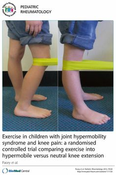 "doi:10.1186/1546-0096-11-30. ""Parents perceive improved child psychosocial health when children exercise into the hypermobile range, while exercising to neutral only is perceived to favour the child's physical health. A physiotherapist prescribed, supervised, individualised and progressed exercise programme effectively reduces knee pain in children with  Joint Hypermobility Syndrome (JHS)."" Ask your physician or PT how these results might apply to EDS / Ehlers-Danlos Syndrome."