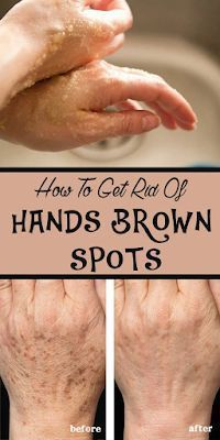 How To Get Rid Of Hands Brown Spots