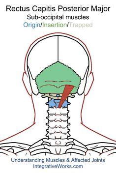 oit-rectus-capitis-posterior-major