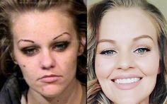 El increíble cambio de una joven antes y después de su adicción a las drogas