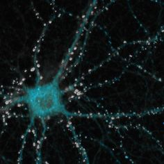The brain contains some 100 billion nerve cells called neurons (Figure 1, to the rightsynapses) which branch out to form over one quadrillion connections called synapses. (Figure 2, to the left). The easiest way trading brainto conceptualize this is that there are more synapses in the human brain than there are stars in the known universe. Memory and learning occur when the neurons and synapses reorganize and strengthen themselves through repeated usage.