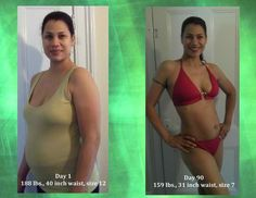 is it harder to lose weight after gallbladder removal