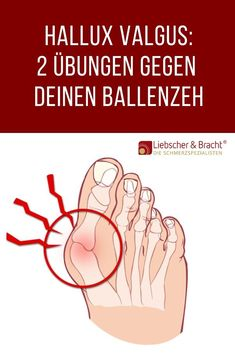 hallux valgus 2 ubungen - The world's most private search engine Health Articles, Health Tips, Definition Of Health, Full Body Cleanse, Regular Exercise, Physical Fitness, Health Fitness, Life Fitness, About Me Blog