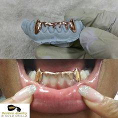"""3,962 Likes, 35 Comments - Gold Grillz Perm Look/Deep Cut (@benzino_jewelry) on Instagram: """"YES BENZINO DOES ROSE GOLD, will be adding to website soon but if you want your set done in rose…"""""""