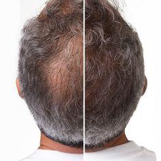 La caída del pelo se debe a diversas causas. Si bien existen factores genéticos, se sabe que una predisposición de este tipo no nos asegura su ocurrencia. Más allá de las posibles causas, nada...