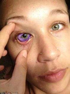 Canadian model Catt Gallinger, 24, inked with a sclera tattoo, a body modification proceedure that colors the whites of the eye, last month in Ottawa