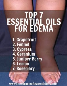 Discover 7 essential oils for edema and 3 recipes to use for relief. Got edema? Use essential oils – they will surely help! With their anti-diuretic and st