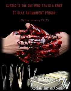 Abolish human abortion!!