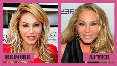 Adrienne Maloof Plastic Surgery Before And After Adrienne Maloof Plastic Surgery #AdrienneMaloofPlasticSurgery #AdrienneMaloof #gossipmagazines