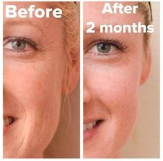 Rodan and Fields Redefine and Reverse Regimen and Multifunction Eye Cream! Before and after!