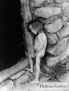 Голод в России 1919 — 1923.starving Russia (Peak famine came in the autumn 1921 - spring 1922.) on the photo- village Osekeevo, Buguruslansky County, Kazan province. Girl 7 years. Skeleton - belly swollen from malnutrition and food substitutes and herbs.