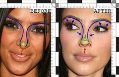Kim Kardashian's Nose Job: a Forensic Analysis | Dr. Rawnsley's Plastic Surgery Blog