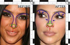 Kim Kardashian's Nose Job: a Forensic Analysis   Dr. Rawnsley's Plastic Surgery Blog