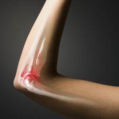 Joints: Rheumatoid arthritis (RA) is an autoimmune disease that affects approximately 1.3 million Americans.