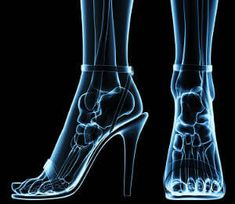"""If you just typed """"pain in heel of foot"""" into your web browser, you're likely looking for answers as to what causes (and alleviates) plantar fasciitis. Plantar Fasciitis Remedies, Toe Fungus, Podiatry, Anatomy For Artists, Foot Pain, Pre And Post, Classic Pumps, Women's Feet, Womens High Heels"""