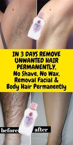 In 3 Days Remove Unwanted Hair Permanently, No Shave No Wax, Removal Facial & Body Hair Permanently Permanent Facial Hair Removal, Remove Unwanted Facial Hair, Unwanted Hair, Natural Hair Removal, Chin Hair Removal, Hair Removal Remedies, Hair Removal Methods, Electrolysis Hair Removal, Ingrown Hair Removal