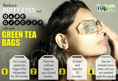 Using Green tea bags can be a relaxing remedy for under eye puffiness and dark circles. : Using Green tea bags can be a relaxing remedy for under eye puffiness and dark circles. Teabags For Eyes, Ongles Forts, Dry Eyes Causes, Green Tea Bags, Green Teas, Beauty Hacks For Teens, Under Eye Puffiness, Eyes Problems, Before Wedding