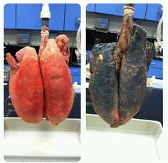 Real Human Lungs Smoker RHLS06