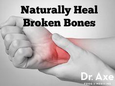 How to Heal Broken Bones Fast Naturally - DrAxe.com 0 http://draxe.com/heal-broken-bones/