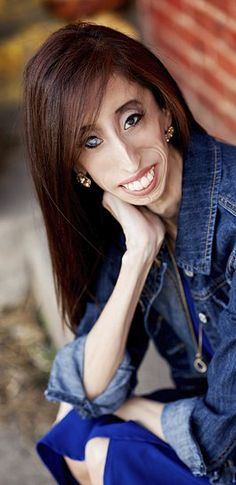 Lizzie Velasquez Fights Back With Motivational Speaking