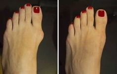 Overview of The Treatment of Bunions