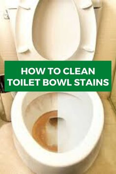 Do you want to clean your toilet bowl stains? Our quick, easy, and effective tips will help you to do this work very easily and make your toilet bowl clean. Cleaning Wood, Household Cleaning Tips, Toilet Cleaning, Cleaning Recipes, Cleaning Hacks, Household Cleaners, Cleaning Checklist, Bathroom Cleaning, Clean Toilet Bowl Stains