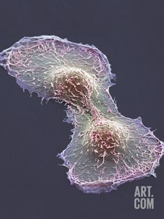 size: Photographic Print: HeLa Cell Division, SEM by Thomas Deerinck : Artists Scanning Electron Microscope, Microscopic Photography, Micro Photography, Cell Line, Systems Biology, Macro And Micro, Anatomy Art, Human Anatomy, Chemistry