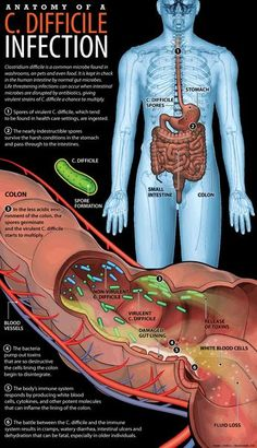 What you Should Know About Clostridium Difficile Infection : Clostridium Difficile Infection: Causes, Symptoms, Treatment, and Nursing Information, Nursing School Notes, Nursing Schools, Nursing Tips, Nursing Programs, Study Nursing, Rn Programs, Lpn Nursing, Nclex