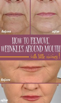 How to remove deep wrinkles around the mouth with little money - Inner Beauty Lip Wrinkles, Prevent Wrinkles, Prévenir Les Rides, Skin Treatments, Rides Front, Reduce Cellulite, Wrinkle Remover, Quites, Scrappy Quilts