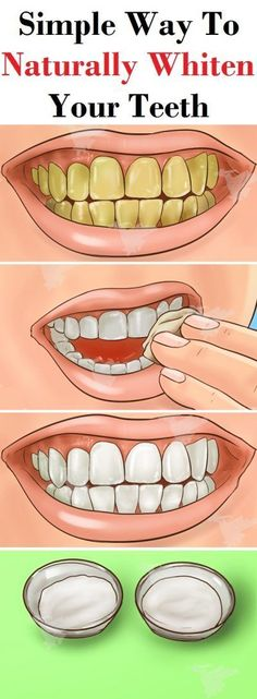 teeth whiting at home charcoal & teeth whiting at home . teeth whiting at home baking soda . teeth whiting at home products . teeth whiting at home coconut oil . teeth whiting at home diy . teeth whiting at home Dental casero Teeth Whitening Remedies, Charcoal Teeth Whitening, Natural Teeth Whitening, Whitening Kit, Skin Whitening, Teeth Whiting At Home, Make Teeth Whiter, Clean Teeth, Teeth Care